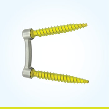 PressON Spinal Fixation System